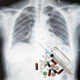 Röntgenstrålebröstkorg och medicin Royaltyfria Bilder