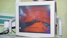 Robot médico da Vinci Cirugía robótica Robusteza médica almacen de video