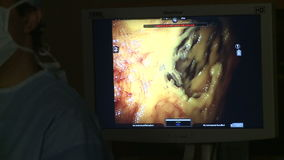 Robotic surgery of the uterus 7 of 15. Scene of Robotic hysterectomy surgery stock footage