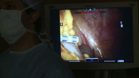 Robotic surgery of the uterus 6 of 15. A scene of Robotic hysterectomy surgery stock footage