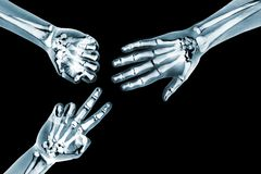Rock paper scissors game with x ray hands Royalty Free Stock Images