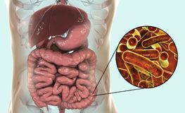 Rod-shaped bacteria Shigella which cause food-borne infection shigellosis or dysentery. The infection of large intestine, 3D illustration Royalty Free Stock Image
