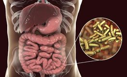 Rod-shaped bacteria Shigella which cause food-borne infection shigellosis or dysentery. The infection of large intestine, 3D illustration Stock Photos