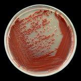 Rode bacteriële die kolonies op een petrischaal op zwarte wordt geïsoleerd stock afbeelding