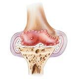 Rodilla - osteoartritis avanzada Fotos de archivo libres de regalías