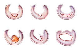 Rodilla - rasgones del menisco Imagen de archivo