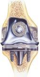 Rodilla - reemplazo total - mostrar la vista cortada del implante Imagenes de archivo