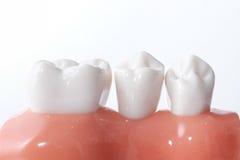 Rodzajowy stomatologiczny zębu model fotografia royalty free