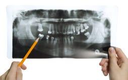 Roentgen photo of teeth. Man is holding roentgen photo of teeth Stock Photos