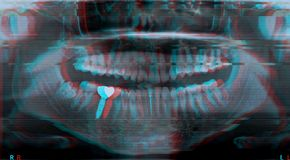 Roentgen teeth upper and lower jaw stock photo