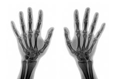 Roentgenogram. X-ray of the hands on white background stock photography