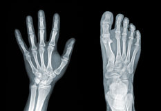Roentgenogram. X-ray of hand and foot on black background Royalty Free Stock Images