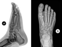 Roentgenogram. Detail of an x-ray of a foot Stock Photography