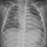 Roentgenogram av bröstkorgen i ett barn efter hjärt- kirurgi Arkivfoton