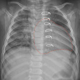 Roentgenogram of the chest in a child after cardiac surgery. X-ray of the chest in a child who underwent cardiac surgery for congenital heart disease. Severe Stock Photos
