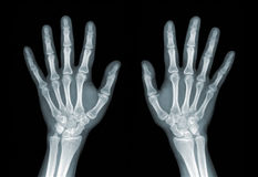 Roentgenogram. X-ray of the hands on black background Royalty Free Stock Photography