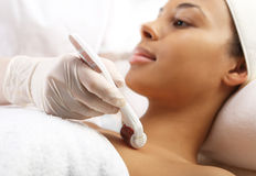 Roller microneedle mesotherapy Stock Photo