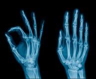ROM di dolori articolari e di limite del polso nel tono blu fotografia stock