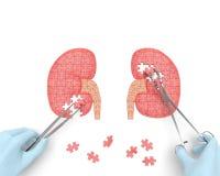Rompecabezas de la operación de los riñones stock de ilustración