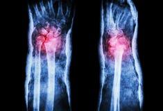 Rompez le rayon distal (la fracture de Colles) et moulez Photos libres de droits