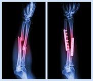 Rompez les deux l'os de l'avant-bras Il a été actionné et fixe interne avec le plat et la vis image stock