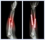 Rompez les deux l'os de l'avant-bras Il a été actionné et fixe interne avec le plat et la vis photos stock