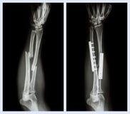 Rompez les deux l'os de l'avant-bras Il a été actionné et fixe interne avec le plat et la vis images stock