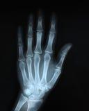 Rontgen χεριών Στοκ εικόνα με δικαίωμα ελεύθερης χρήσης