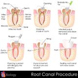 Root Canal Procedure royalty free illustration