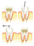Root canal process. Illustration of the dental root canal process Stock Images