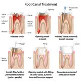 Root canal treatment Stock Photos