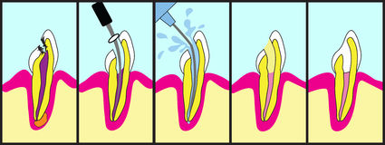 Root Canal Treatment. Dental root canal treatment illustrated step by step Stock Images
