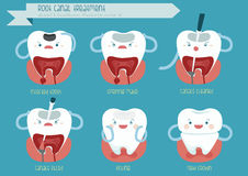 Root canal treatment Stock Images