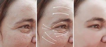Rosacea προσώπου ρυτίδων γυναικών πριν και μετά από cosmetology διαφοράς επίδρασης τη διόρθωση θεραπείας, βέλος στοκ φωτογραφίες