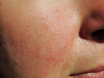 Rosacea on face of middle aged woman. Closeup shot royalty free stock photos