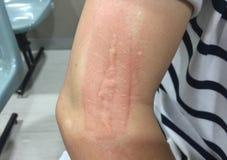 Rossore, dal laser di trattamento della cicatrice, su un braccio fotografia stock libera da diritti