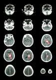 Rot wir, zum des Verletzungsfokus zu identifizieren Ct-Scan (Computertomographie) des Gehirns (c lizenzfreie stockfotos
