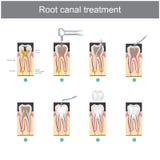 Rota kanalbehandling Hur man behandlar våra tänder royaltyfri illustrationer