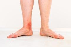 Roter Hautausschlag auf Bein des Patienten, der durch ein Insekt gebissen wurde lizenzfreies stockbild
