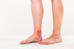 Roter Hautausschlag auf Bein des Patienten, der durch ein Insekt gebissen wurde stockfoto