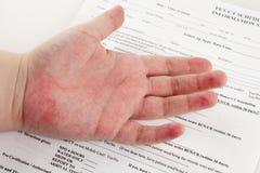 Roter Hautausschlag an Hand lizenzfreie stockfotografie