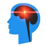 Roter heller Strahl im Kopf Stockbild