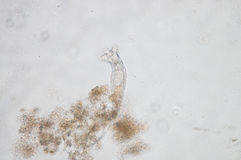 The rotifer. Rotifera, commonly called wheel animals make up a phylum of microscopic and near-microscopic pseudocoelomate animals Stock Photo