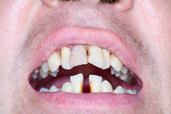 Rotten and crooked teeth of men. Crooked teeth can be sign of running periodontal Stock Photo