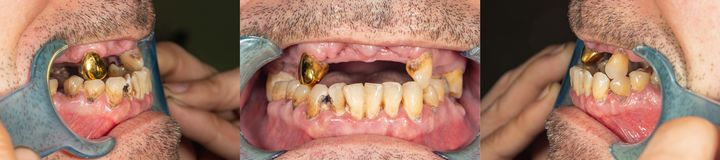 Rotten teeth, caries and plaque close-up in an asocially ill patient. The concept of poor hygiene and health problems. Rotten teeth, caries and plaque close-up stock images