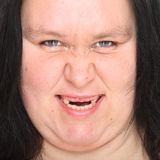 Rotten teeth. Portrait of an woman with a mouth showing a rotten teeth Royalty Free Stock Photos