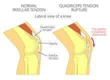 Rottura del tendine dei problem_Quadriceps del ginocchio illustrazione vettoriale