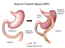 Roux-en-Y Gastric Bypass surgery Stock Photos