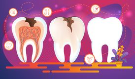 Row of Teeth with Dental Problems. Cross Section stock illustration