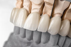 Row of teeth prosthesis. Close-up view of dental layout of upper row of teeth prothesis on artificial jaw, medical concept Stock Photos